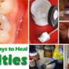 30-Most-Recommended-Remedies-to-Get-Rid-of-Cavities-at-Home-Naturally-685cfd3f5b825480f9574fcab4cefe6af51f62ac